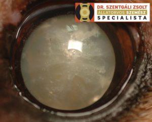 a látás műtéti kezelése)