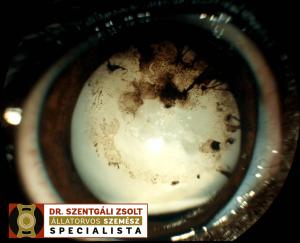 Kezeletlen szürkehályogos szemlencse okozta idült belső szemgyulladás